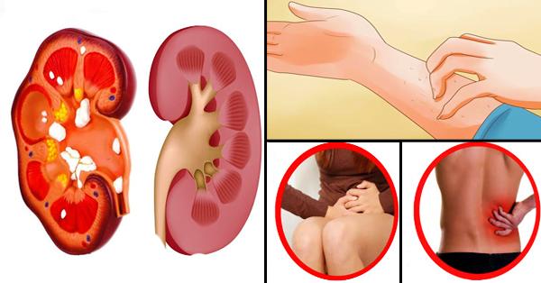 Durerea de rinichi: cauze, simptome, tratament, preventie | sanchi.ro