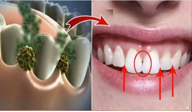 bacterii gura medicamente eficiente pentru paraziți