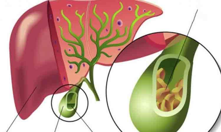 Adenomul de prostată: cauze, simptome, tratament