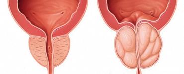 Top 5 suplimente naturiste care ajuta la sanatatea prostatei